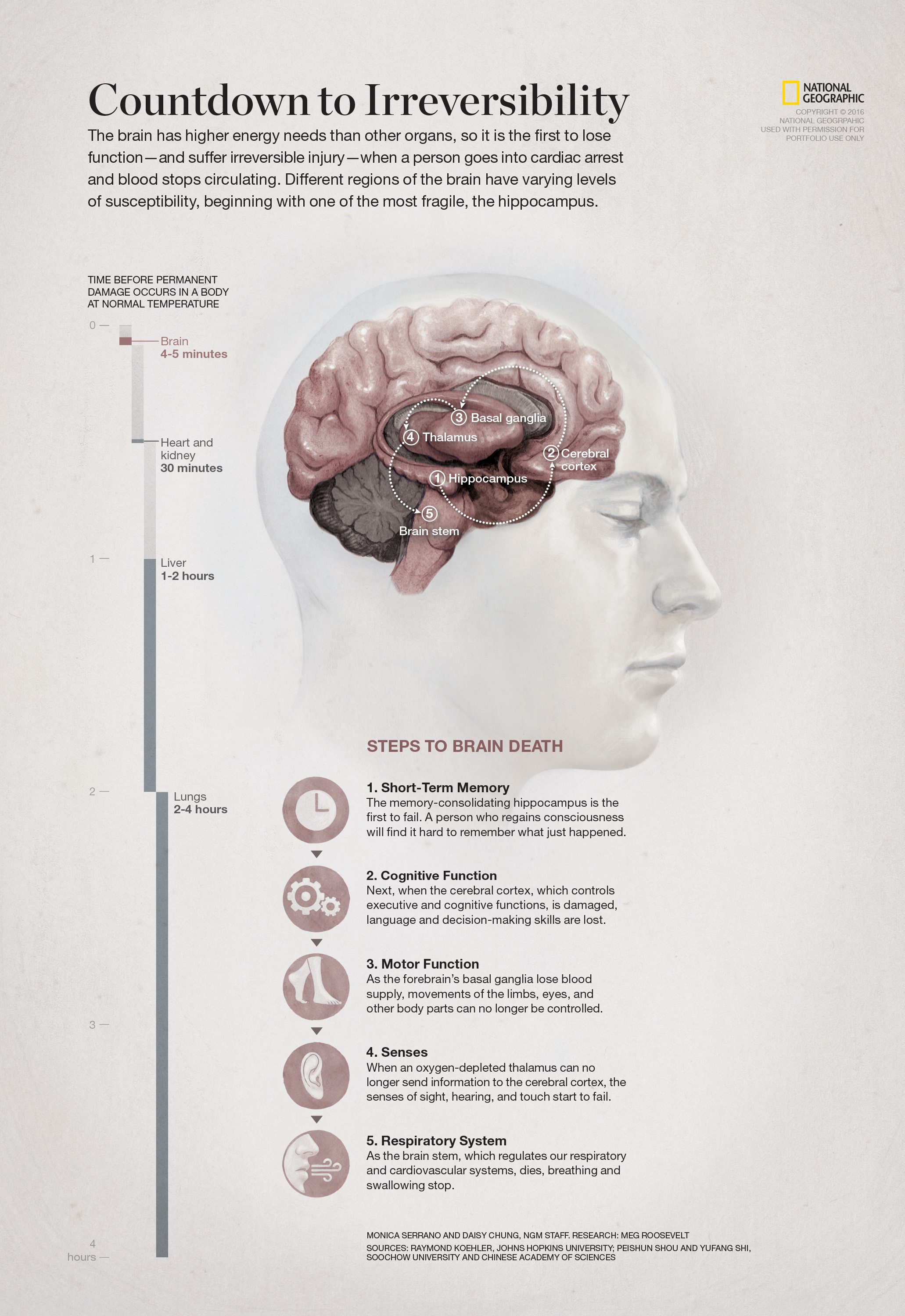 Steps to Brain Death – DC